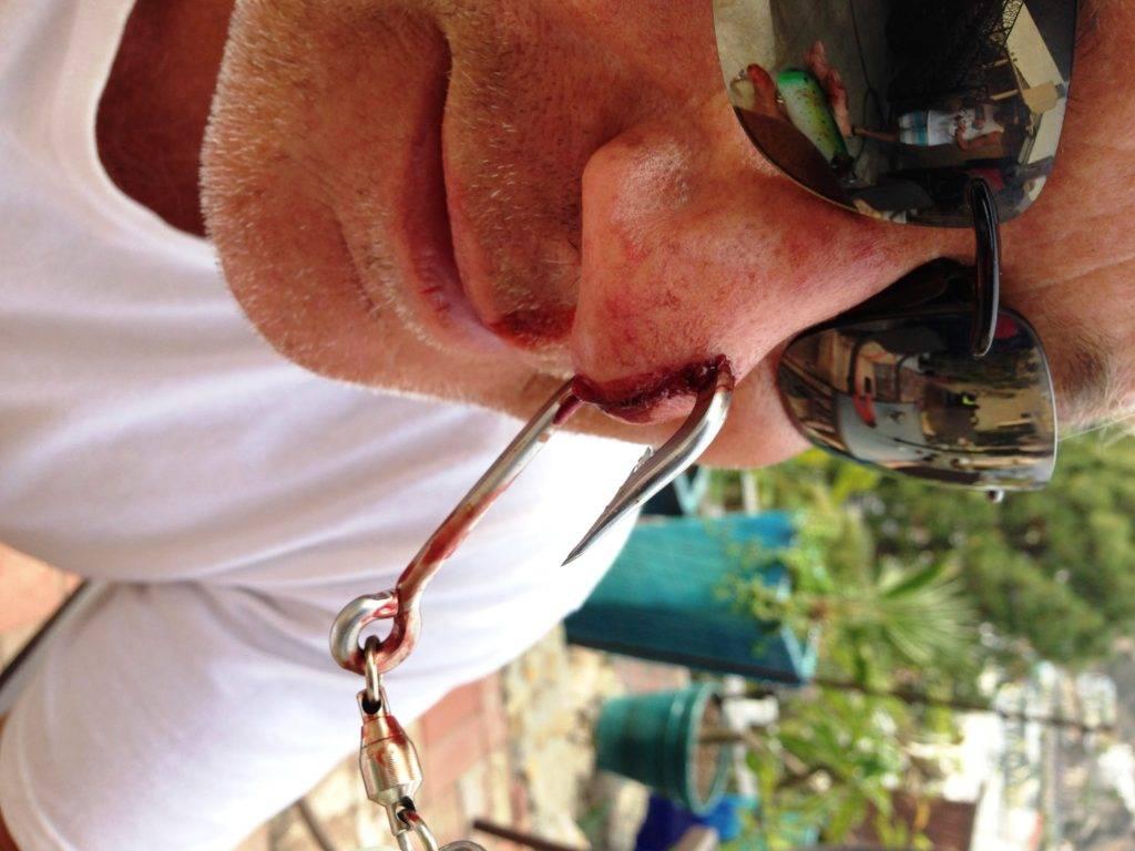 Экстрактор для рыбалки своими руками, как им вытащить рыболовный крючок из рыбы