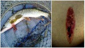 Какая рыба описторхозная: пелядь, щекур, щука, форель, муксун, пыжьян и другие виды рыб списком