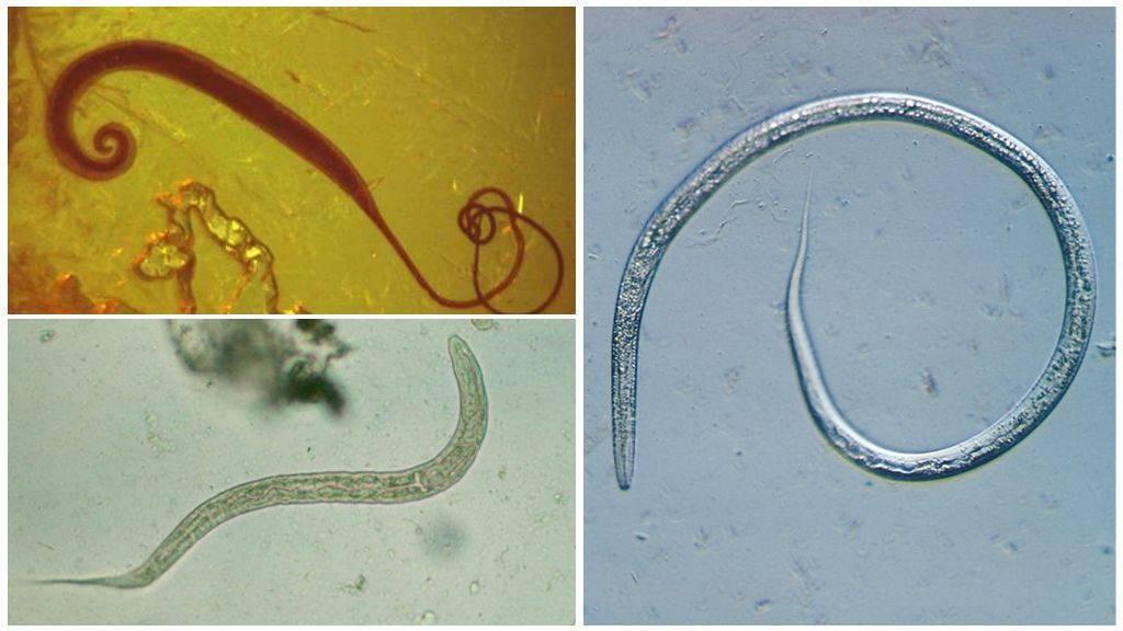 Глисты в рыбе: как выглядят паразиты в замороженной или соленой рыбе и их симптомы, можно ли заразиться ими и что делать после этого