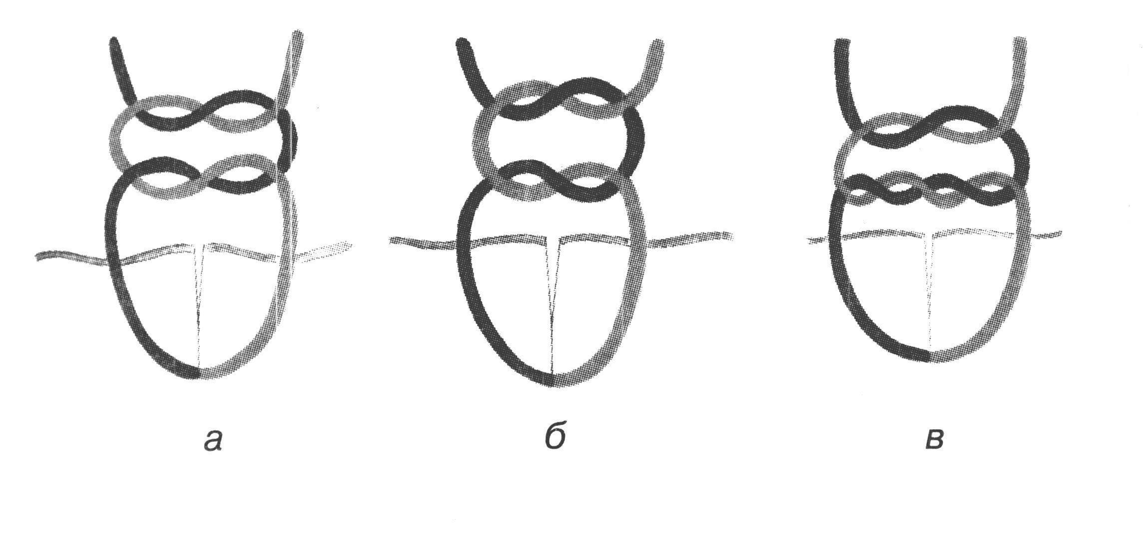 Хирургический узел ? как завязать, пошаговая схема с фото и видео