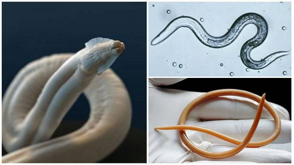 Нематоды (круглые черви) у человека: строение, симптомы, лечение