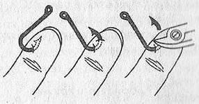 Как вытащить рыболовный крючок из пальца? - wiki-otvet.ru