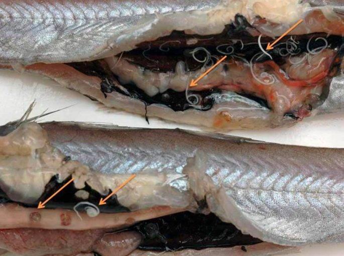 Как выглядит солитер в сушеной рыбе - здоровыесоветы