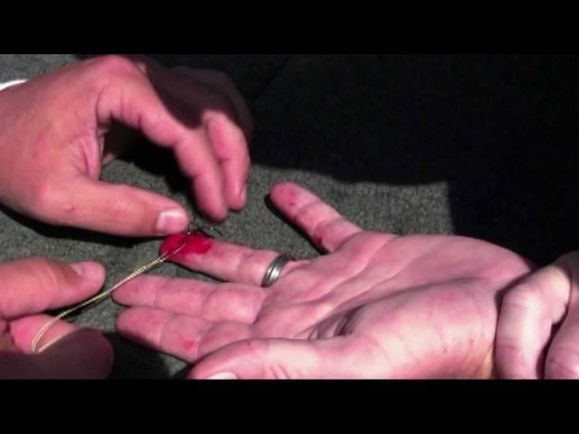 Как вытащить крючок из пальца (слабонервным не смотреть!) (запись в блоге 6144)