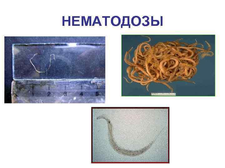 Основные виды паразитических червей