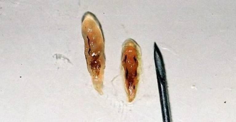 Как передается описторхоз от рыбы человеку? - плоские черви, описторхоз | виды, симптомы, диагностика, лечение