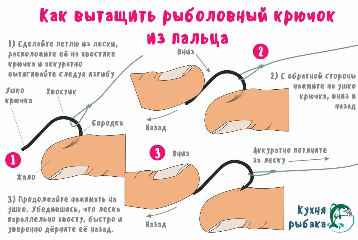 Как вытащить крючок из пальца и как не попасть на крючок