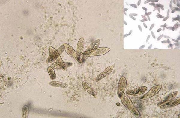 Живой корм для аквариумных рыбок: как вырастить в домашних условиях, можно ли давать дождевых червей, что на счет замороженного мотыля, а также чуть о коретре