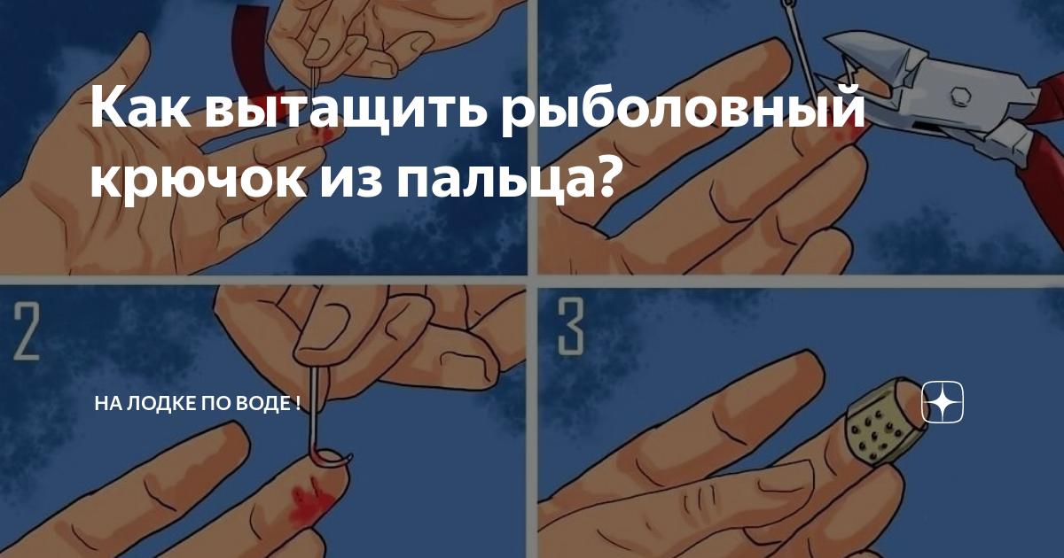 Как вытащить крючок тройника из пальца