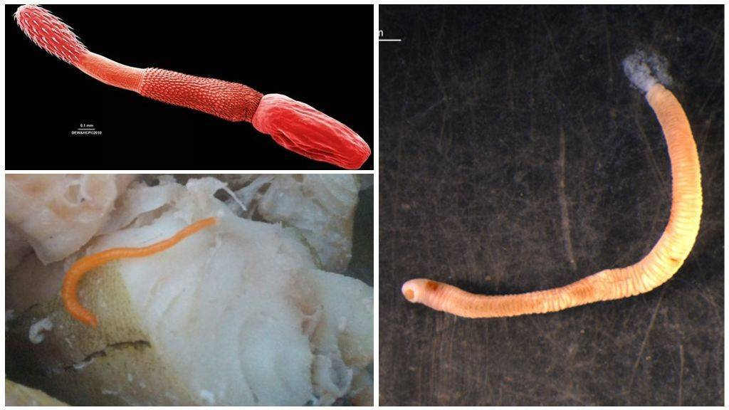 Опасные и безопасные червяки в рыбе для организма человека