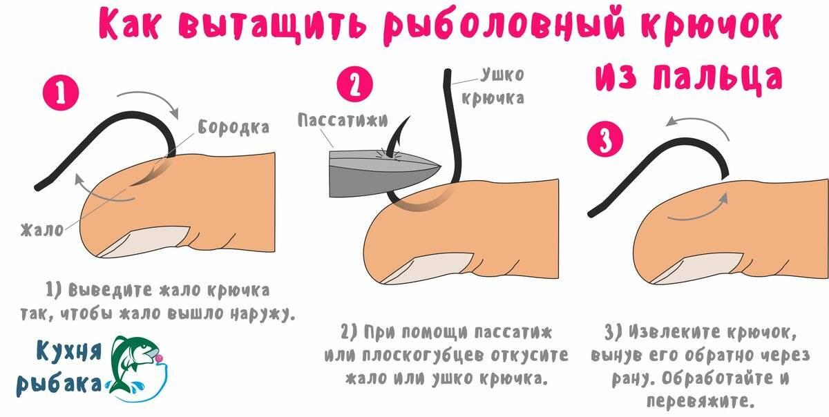 Как вытащить крючок тройника из пальца - рыбалка